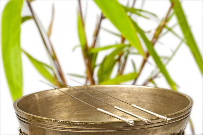 akupunktur-sentralt-oslo5